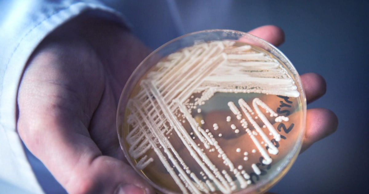 Deadly super fungus spreading across US: How to avoid it