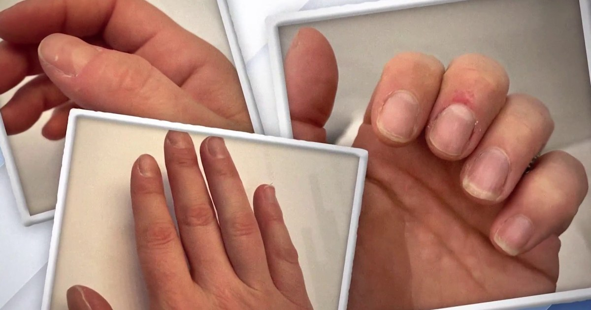 Dylan Dreyer tries to kick her nail-biting habit