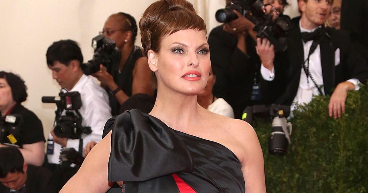 Model Linda Evangelista reveals cosmetic procedure she alleges went horribly wrong - Today.com