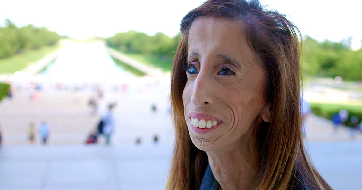 Lizzie Velasquez On Beating Back Bullies After Being Called World S Ugliest Woman