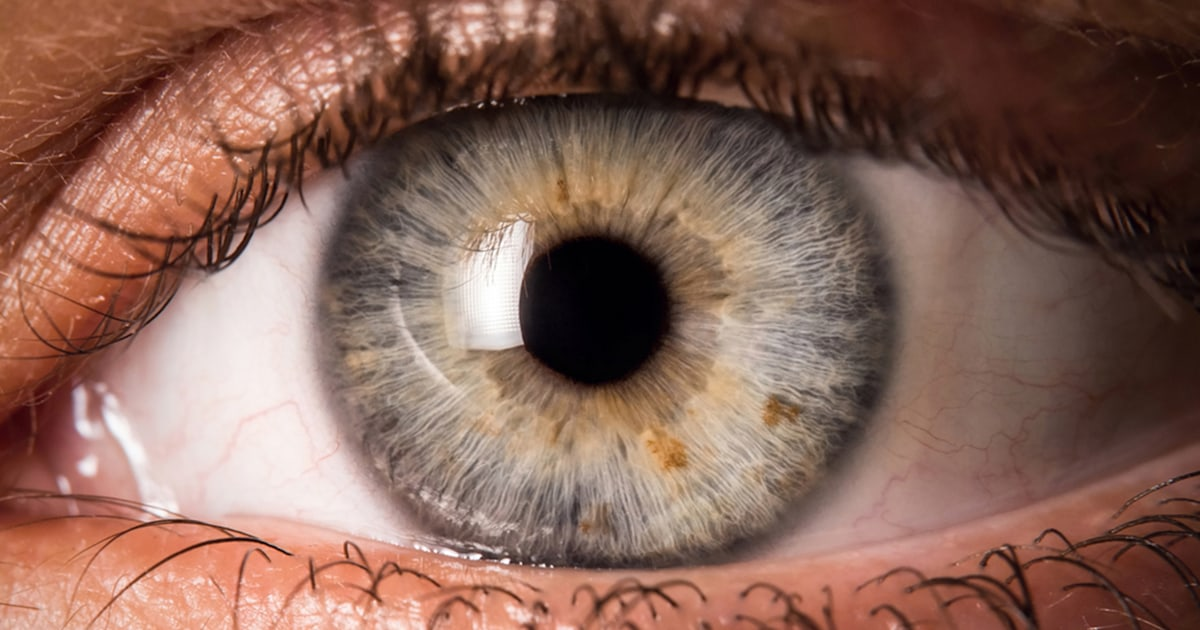 What Are Eye Floaters 5 Vision Symptoms You Shouldn T Ignore