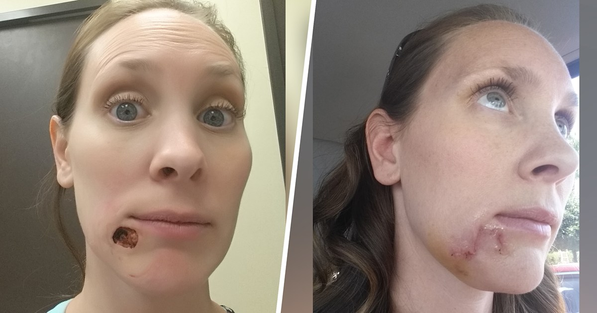 Woman Shares Story Of Pimple That Turned Out To Be Squamous Cell Carcinoma
