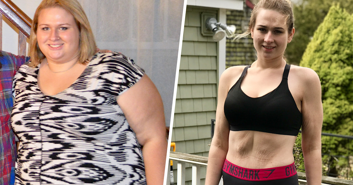 PCOS caused her obesity, how she then lost almost 200 pounds