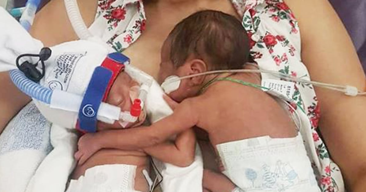 High-risk pregnancy 'momo' twins embrace in first meeting