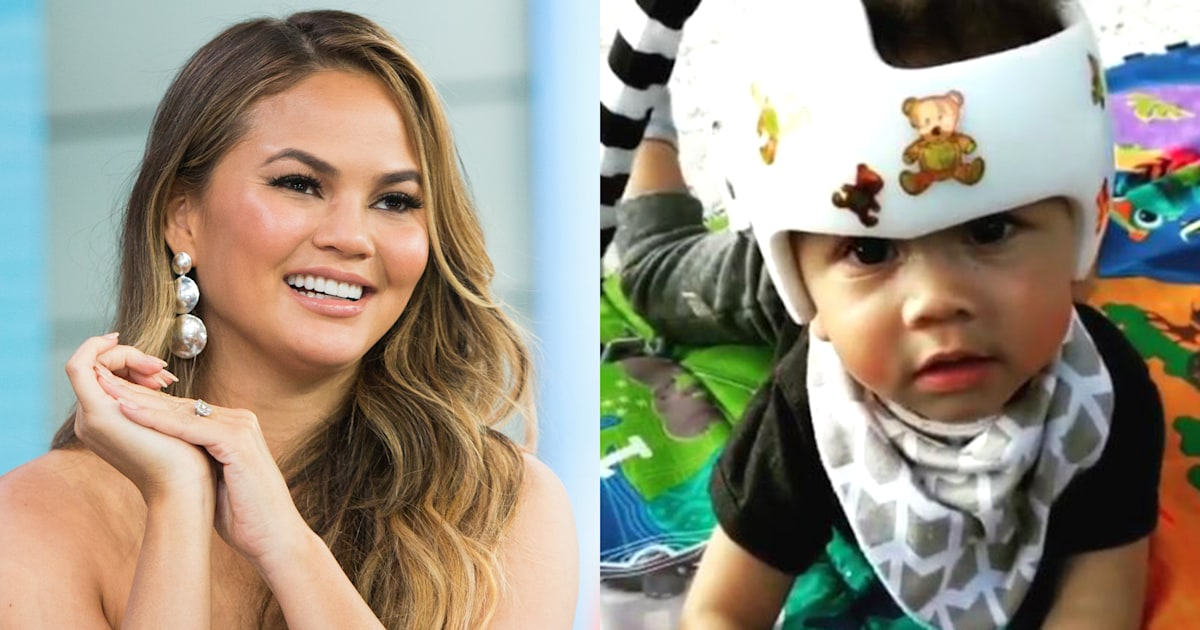 Chrissy Teigen reveals son Miles is finished wearing his helmet: 'Such a trooper'