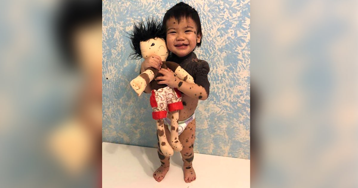 Kids with differences see themselves in A Doll Like Me