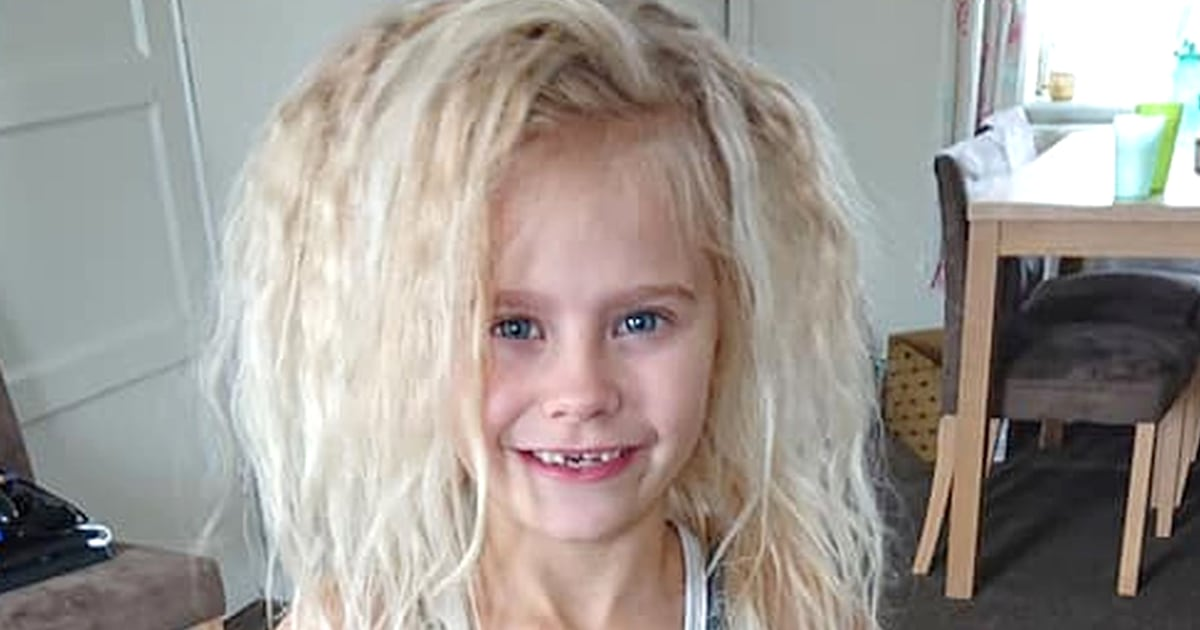 'Uncombable hair syndrome' is real: Meet the girls with the unruly manes