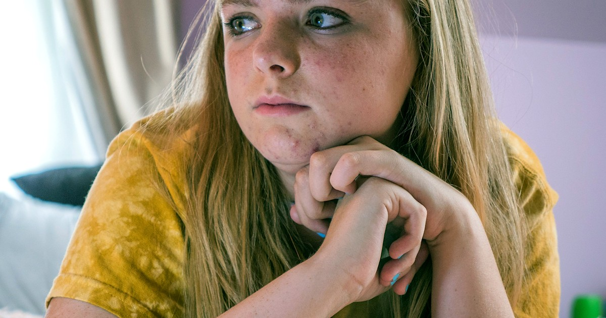 Teen acne may have an upside: Better grades and more life success