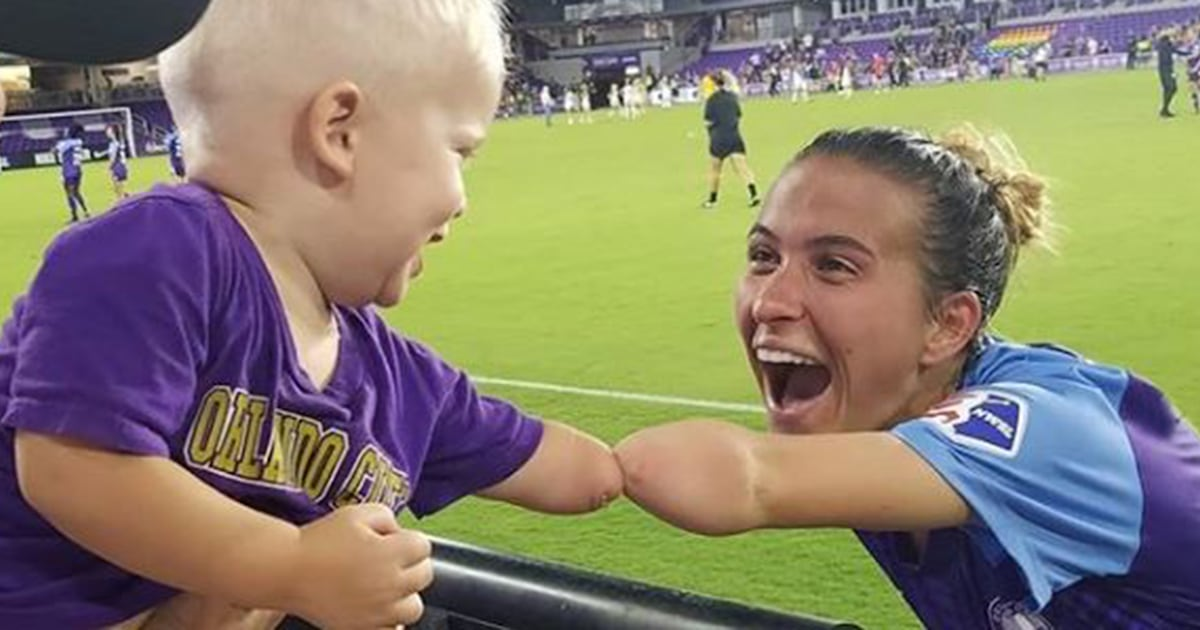 Photo of boy and soccer player with limb differences goes viral