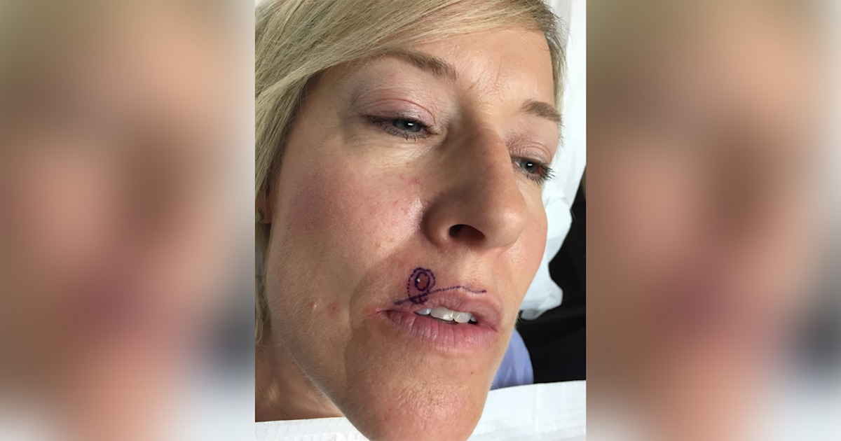 What Does Squamous Cell Carcinoma Look Like Spot Above Lip Was Skin Cancer