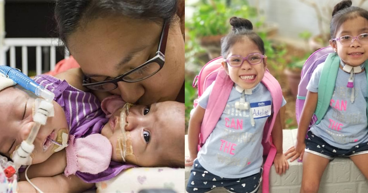 Formerly conjoined Mata twins are now 5, start pre-K in Texas
