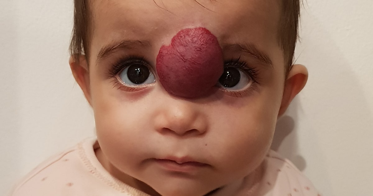 Little girl has life-changing surgery to remove facial tumor