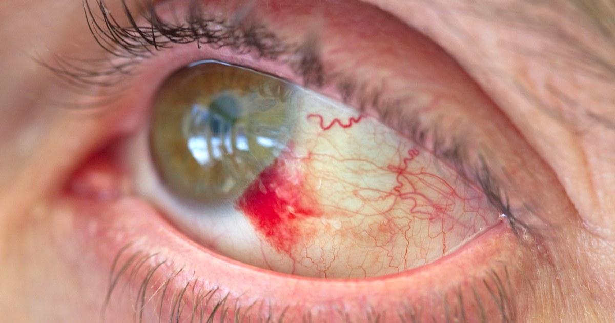 What is a subconjunctival hemorrhage? Blood in Joe Biden's