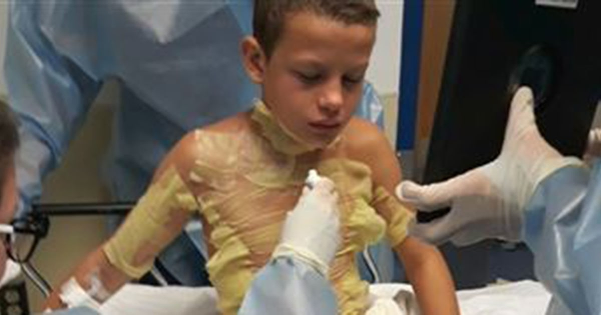 'Fire challenge' leaves 12-year-old boy with severe burns after friend set him on fire