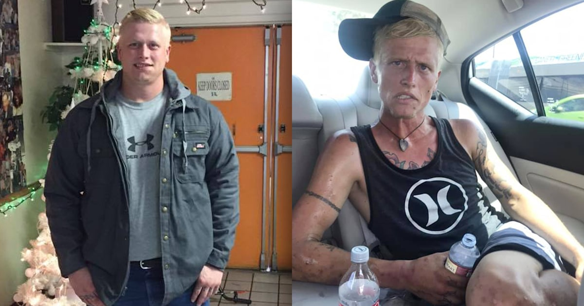 Face of addiction: Mother posts before and after photos of her son