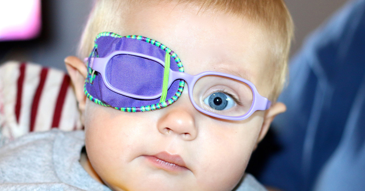 These moms are trying to lift the stigma around eye patches for kids