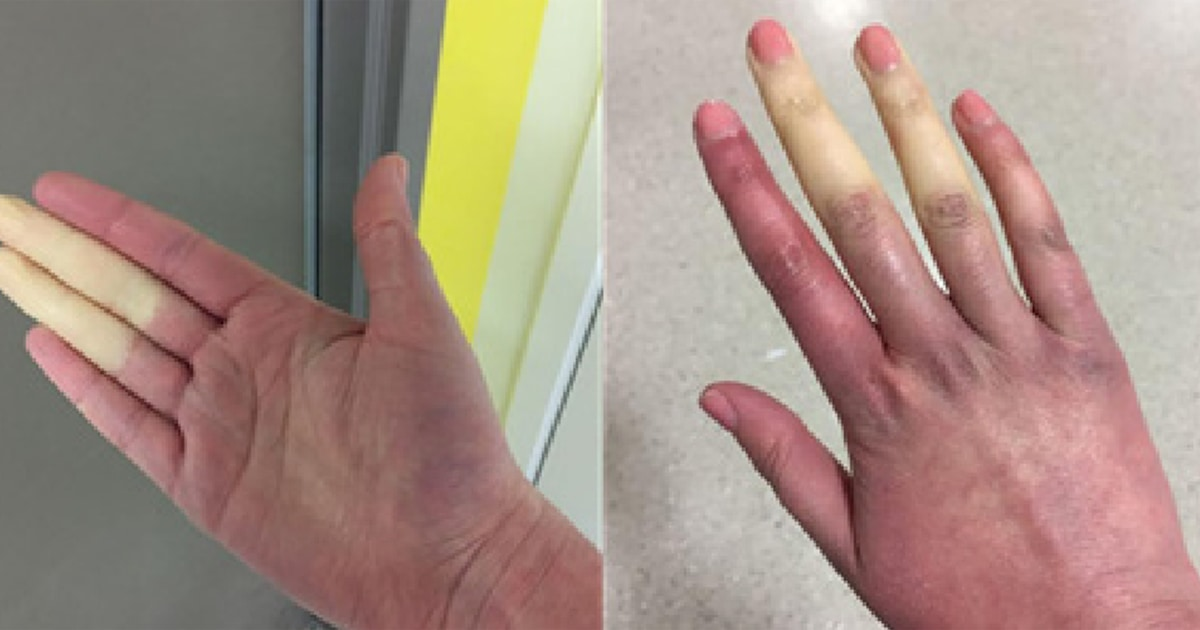 Rare disorder can turn fingers, toes white or blue when it's cold