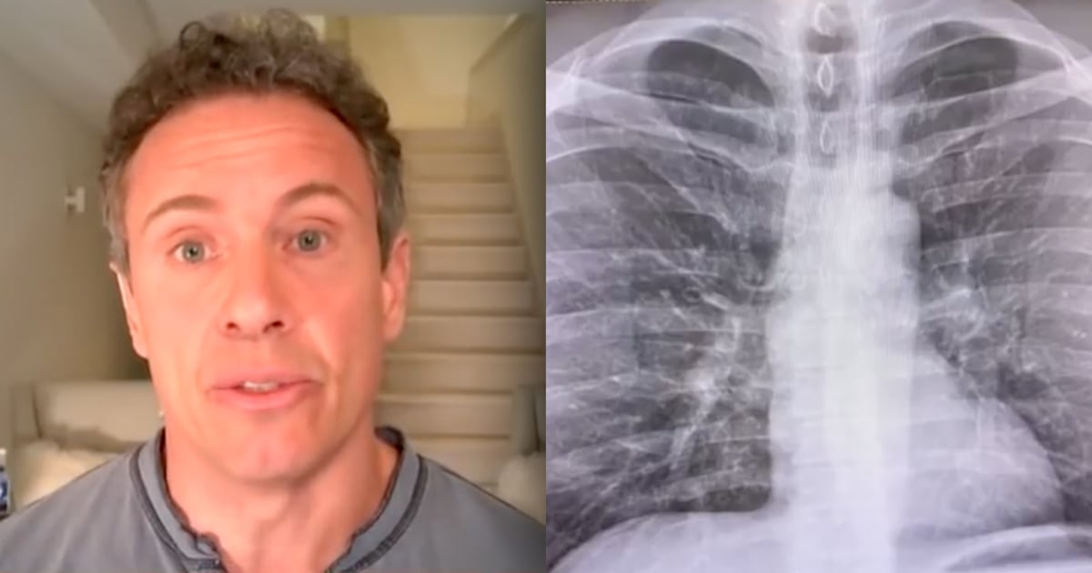 Chris Cuomo shares 'scary' chest X-rays as he continues to fight coronavirus