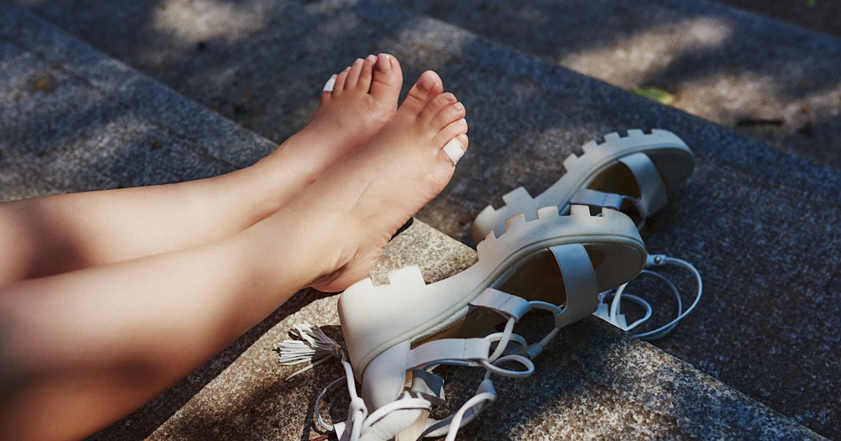 How to stay blister-free this summer, according to dermatologists