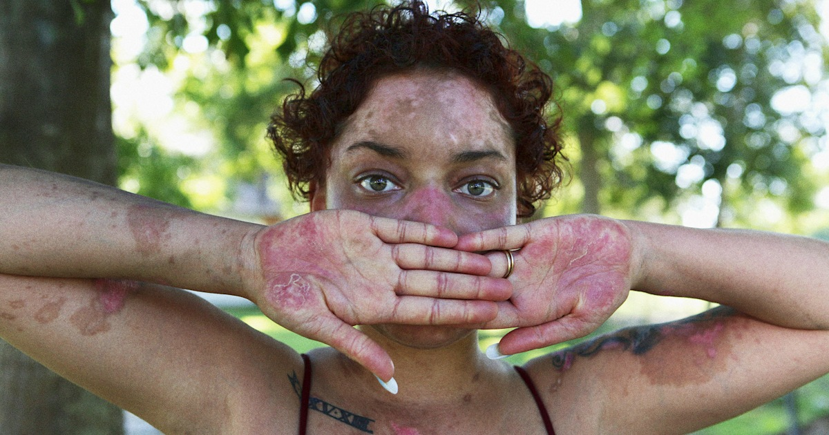 Could that rash on your face be a sign of lupus?