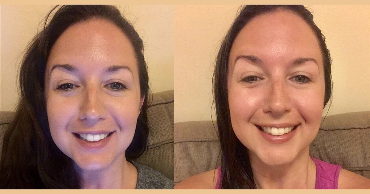 This $20 vitamin C serum made my skin brighter in less than a week