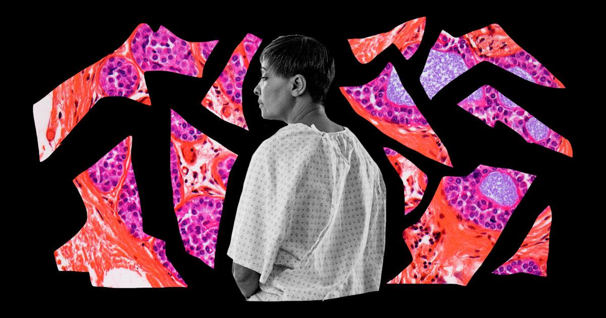 'Black breasts matter': Black women speak out about breast cancer risk