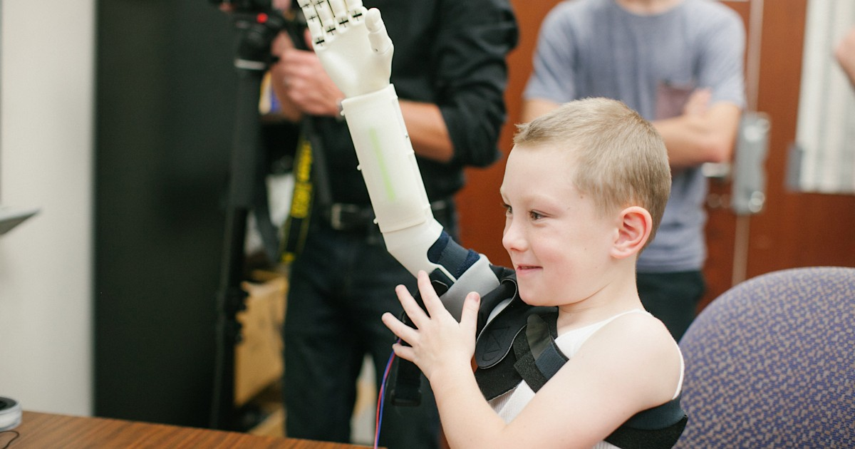 For 6-year-old Alex, 3-D printing means a new arm