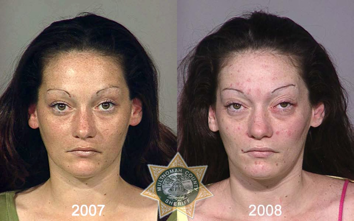 From drugs to mugs: Disfiguring toll of addiction - Slideshows and