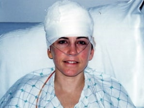 Surviving Traumatic Brain Injury Today Gt Health Today Com