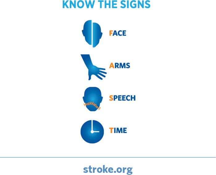Stroke symptoms in women: Know when to call for help ...
