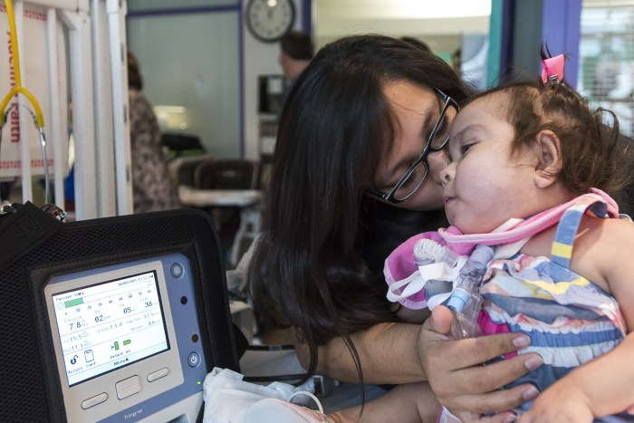Formerly conjoined twin goes home after successful separation surgery