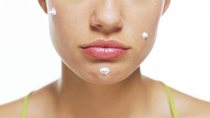 How texting can keep you acne-free