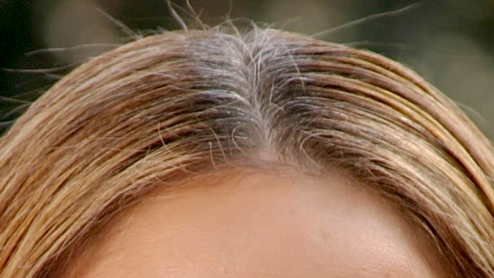Grey hair roots