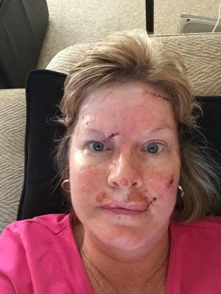 Woman Shares Skin Cancer Ordeal Warns About Tanning Beds