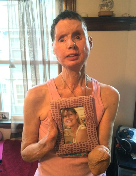 Alleged victim of chimp attack (Charla Nash?) : MedicalGore