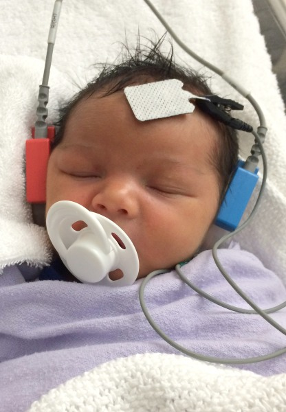Three-Month-Old Australian Baby Jordan Hears For The First Time