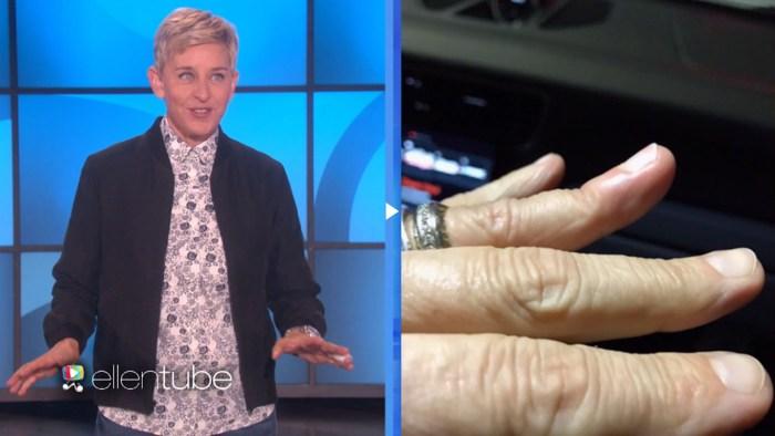 Ellen DeGeneres ends up in emergency room after injuring her finger
