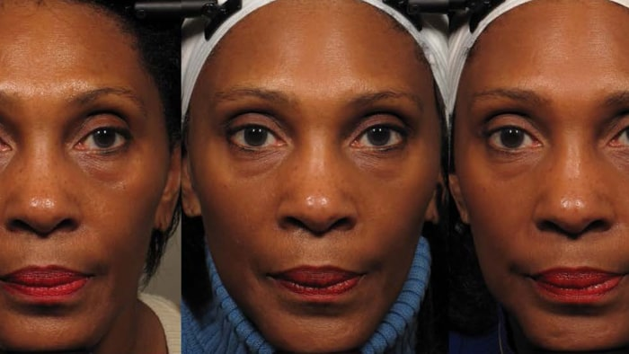 Facial yoga makes women look younger, new study claims