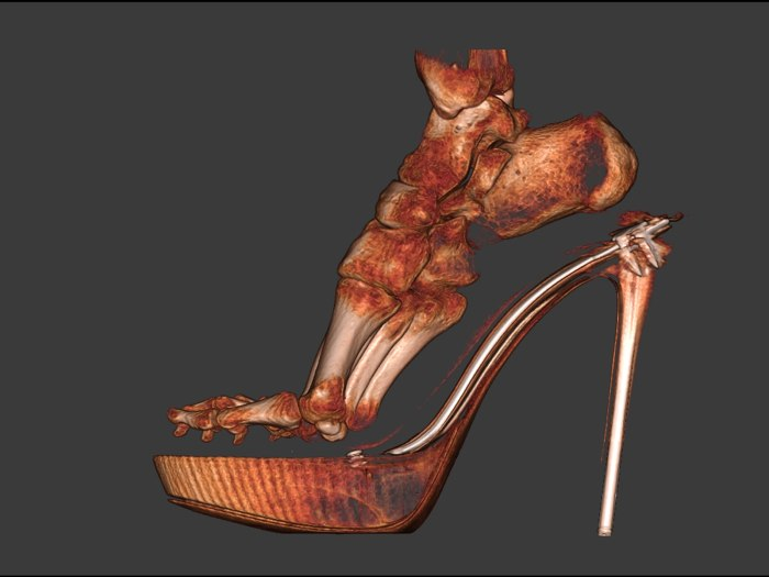 What your foot really looks like in high heels - TODAY.com