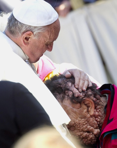 epa03937958 Pope Francis (R) hugs a sick person in Saint Peter's Square at the end of his General Audience in Vatican City, 06 November 2013.  EPA/CLA...