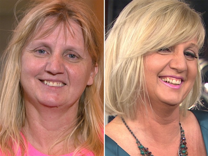 Connie Martin, before and after her TODAY ambush makeover.