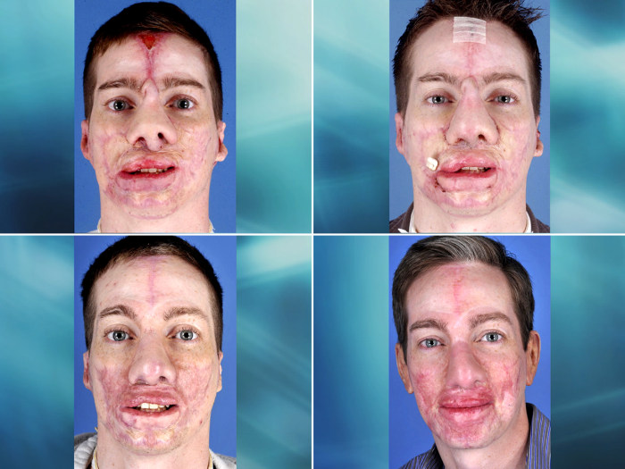U.S. Marine corporal Aaron Mankin's face has undergone a remarkable transformation thanks to more than 60 surgeries by the surgeons in Operation Mend at UCLA Medical Center.