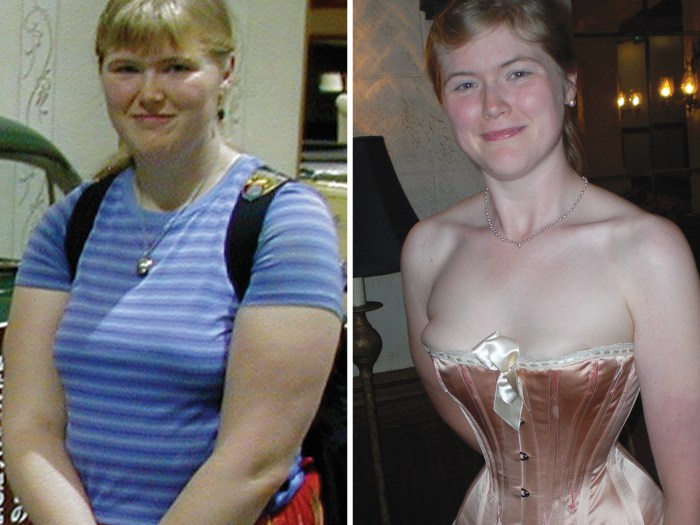 Then and now: Chrisman before and after she adopted wearing a corset. She says the undergarment has helped her shed significant weight.