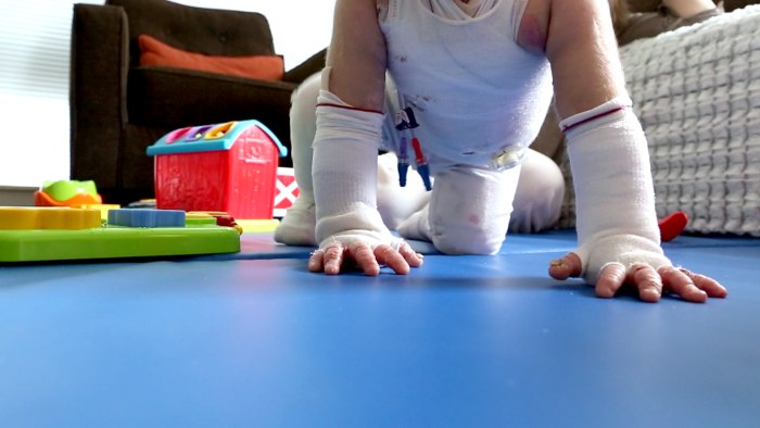 17-month-old Elisa McCann is living with Epidermolysis Bullosa, a rare and debilitating skin disease. Her condition has been rapidly improving after s...