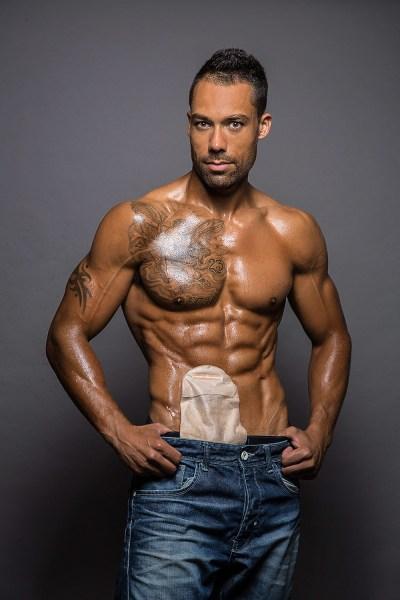 Blake Beckford poses shirtless with ileostomy bag.