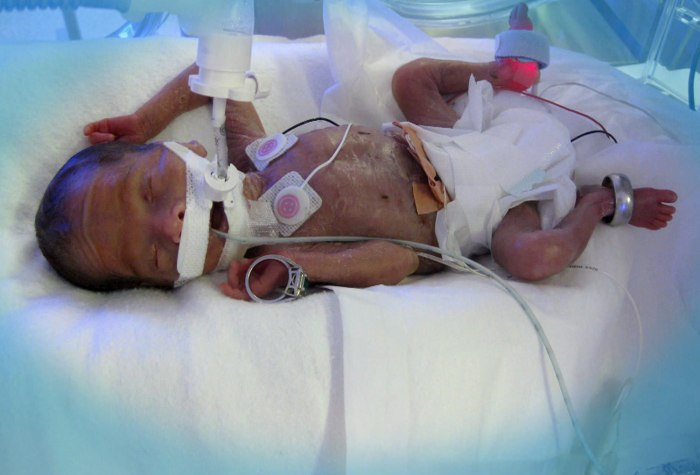 Fei's daughter was born nearly four months prematurely.