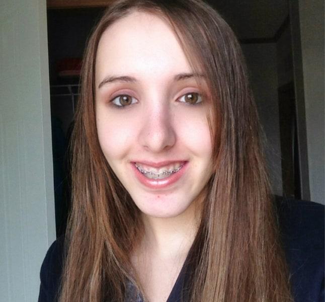 Tormented Over Their Looks Bullied Teens Seek Free