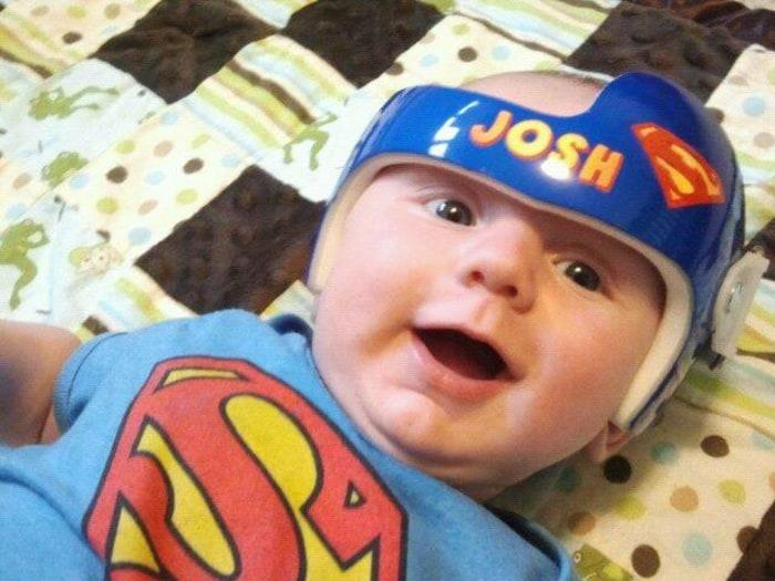 From Star Wars To Superman Baby Medical Helmets Get Creative - Baby helmet decals