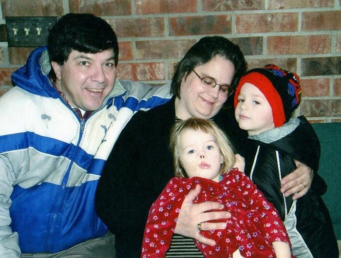 Charlotte with her family before the reconstructive surgery.