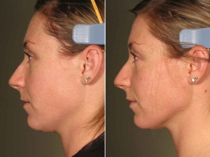 Ultherapy: Reviews & Cost Before & After Pictures